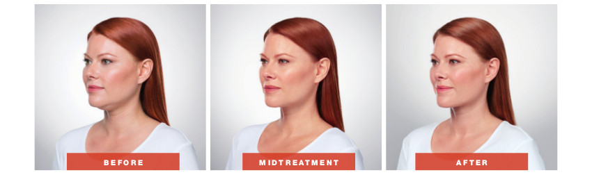 Adra Kybella Before & After